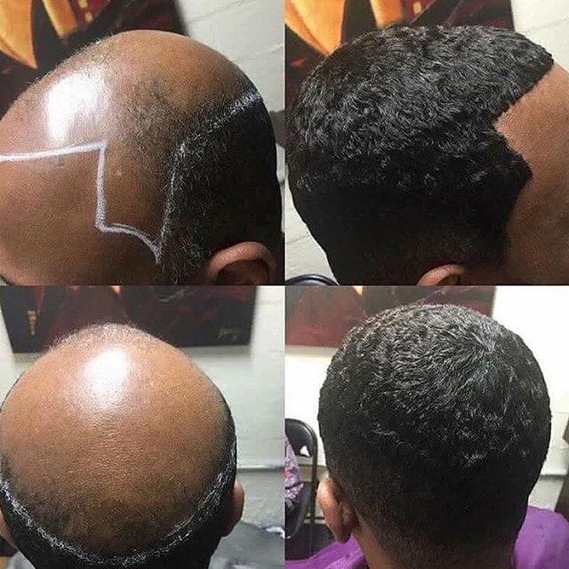 Hair Transformation Male