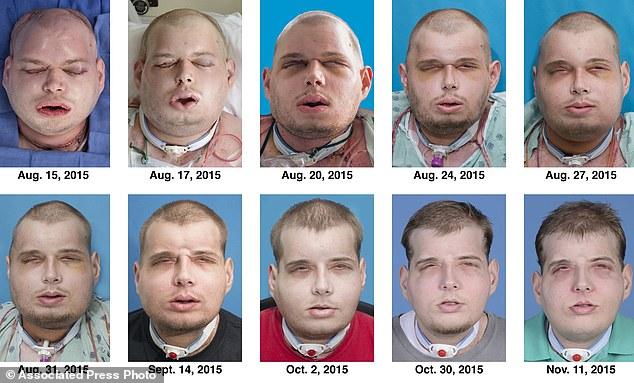 Face Transplant2
