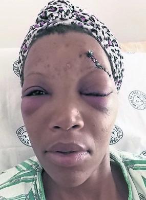 Woman Beaten Mercilessly