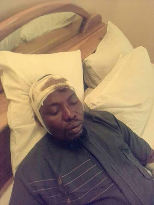 armed thugs beat kogi lawmaker