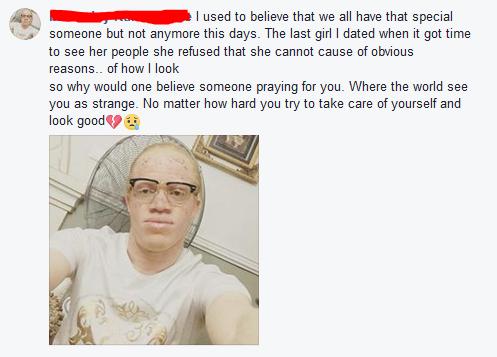 Albino reveals