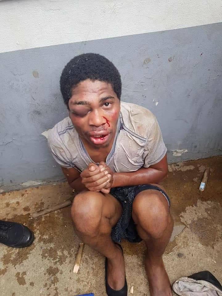young man beaten