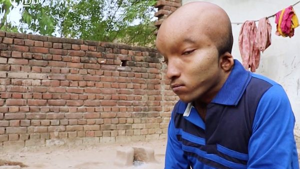 Indian man with Alien head