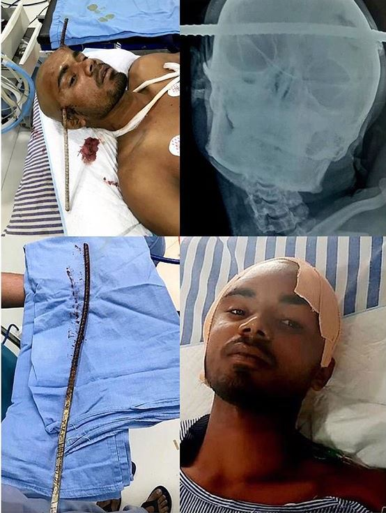 Indian man survives