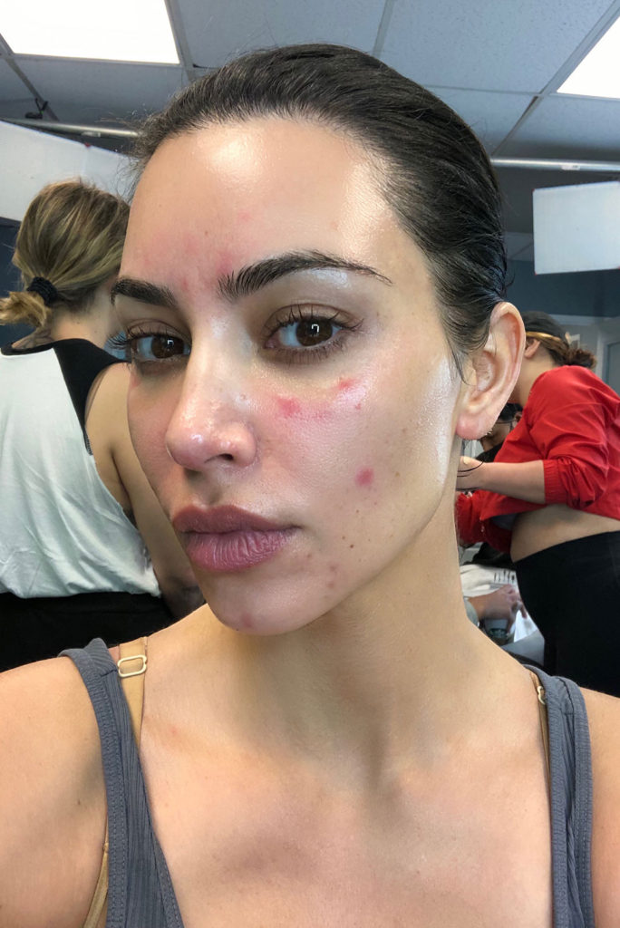 Kim Kardashian Opens Up about Her Struggle with Psoriasis