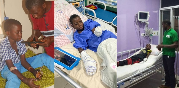 Image result for 13-year-old boy loses both hands after his stepmother and her native doctor burnt them with hot coals following claims he is a wizard""