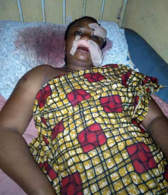 Lady destroyed her friend face over N950