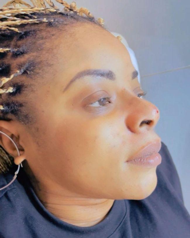 Laura Ikeji undergoes